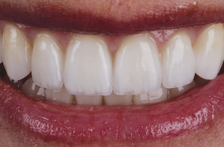 Ολική αποκατάσταση Στόματος